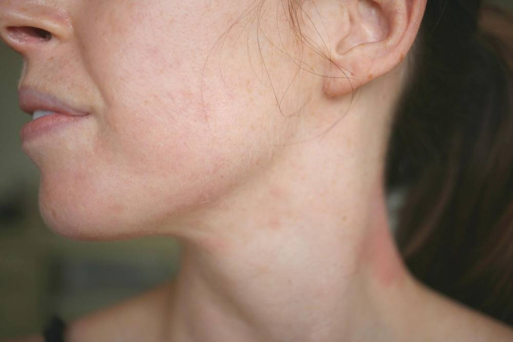 Accutane Acne Treatment Before After Carlyrowena